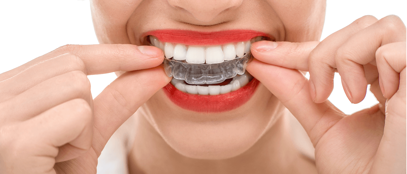 Home whitening treatment